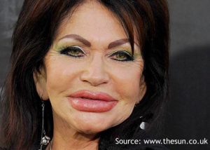 Age-inappropriate lip augmentation