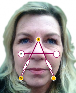 Aurora Lift points for facial rejuvenation