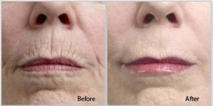 Image showing before and after photos of the Peri Oral area