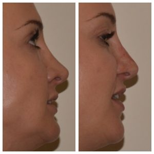 Before and After Non-Surgical Rhinoplasty | Cosmetic Courses
