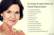 Diagram of the 12 Areas to Inject Botox for Facial Rejuvenation | Cosmetic Courses