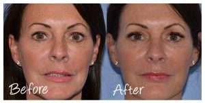 Before & After 8 Point Facelift with Cosmetic Courses