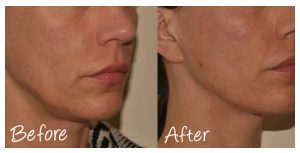 Cosmetic Courses: Before and After Photo Non-Surgical Facelift