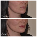Cosmetic Courses: Before and After Photo Lip Filler