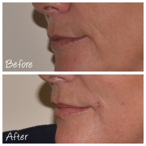 Cosmetic Courses: Before and After Photo Marionette Lines