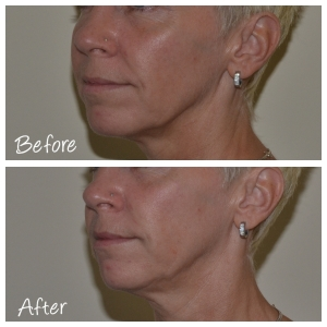 Before & After Nose to Mouth Line Filler with Cosmetic Courses