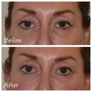 Before and After Tear Trough Filler | Cosmetic Courses