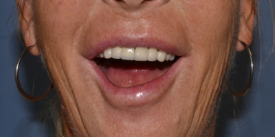 case study lower lip droop following injection of botox to the