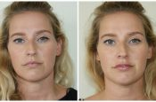 Lip Masterclass Dr Olha Before and After Lip Filler