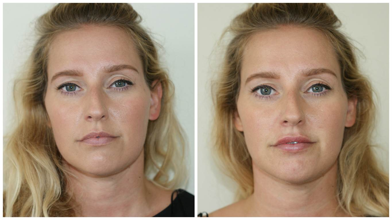 BLOG: New Approach to Lip Filler