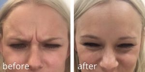 before and after botox (1)