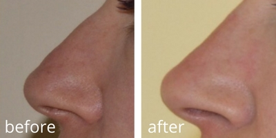 before and after non surgical rhinoplasty (1)