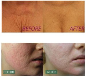 Before and After Dermaroller Treatment at Cosmetic Courses
