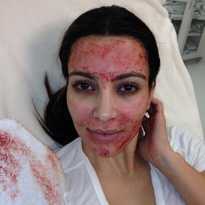 Kim Kardashian PRP