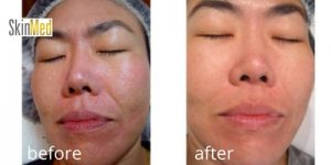 before and after advanced chemical peel