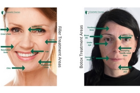 botox and filler treatment areas