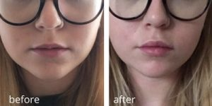 before and after lip fillers (1)