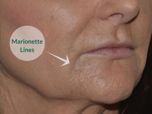 marrionette lines