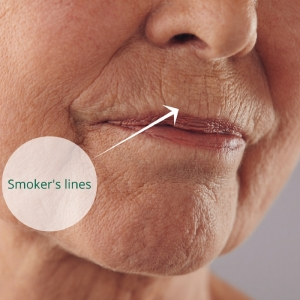 smokers lines