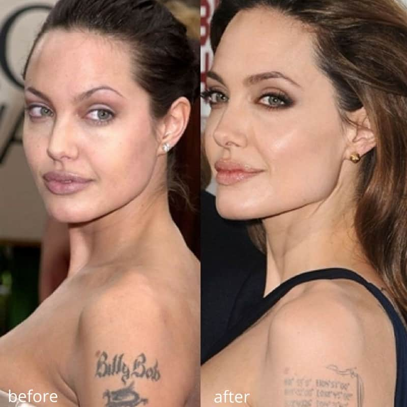 angelina jolie chin augmentation before and after
