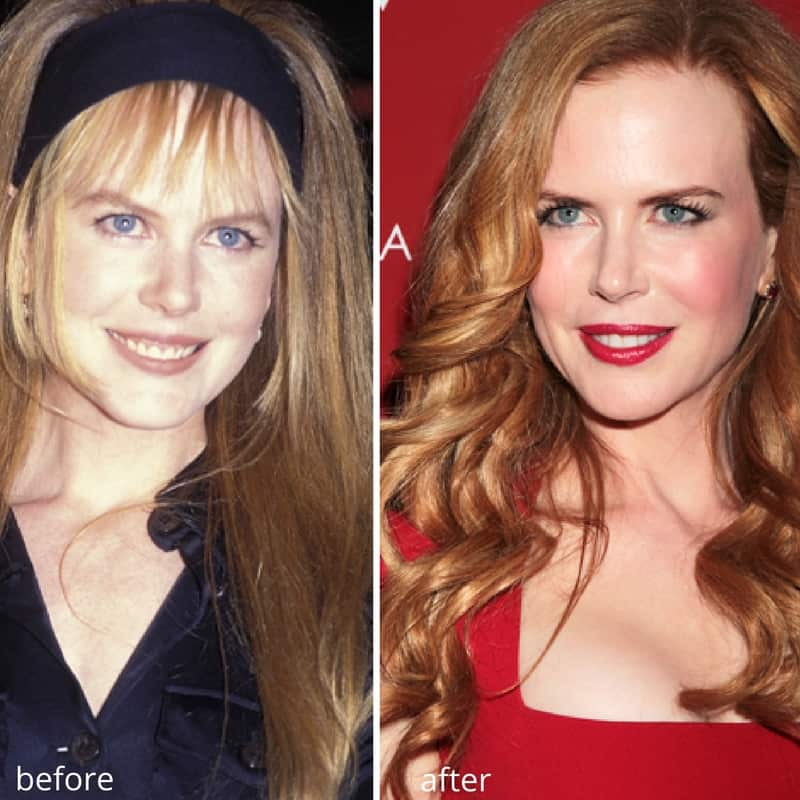 nicole kidman chin augmentation before and after (1)