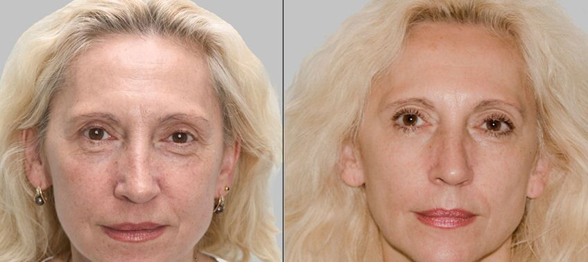 rederm before and after