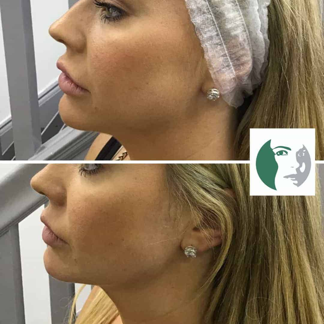 Jaw Filler Before & After - Cosmetic Courses