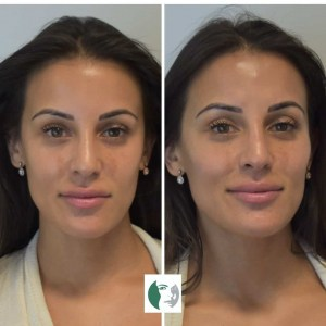 before and after cheek filler - cosmetic courses