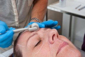 Microneedling with Chemical Peel Training
