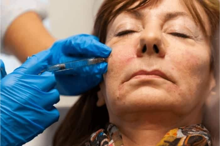 Botox and Dermal Filler Advanced Training Course