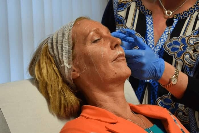 Non-Surgical Face Lift Training