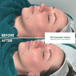 DERMAPLANE BEFORE AND AFTER
