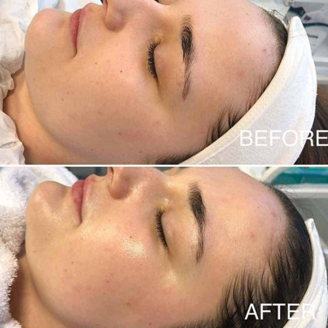 before and after demarplaning treatment cosmetic courses